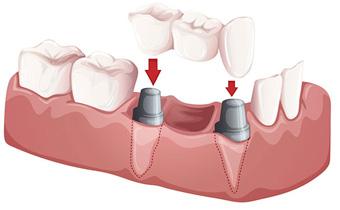 Dental Bridges Lufkin, Conroe, Bryan, Spring, Tomball, Humble and Huntsville
