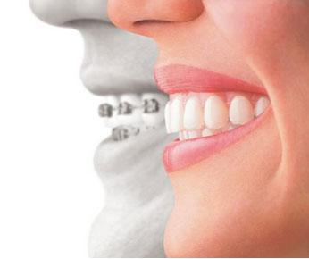 Invisalign Braces Orthodontics Orthodontics Lufkin, Conroe, Bryan, Spring, Tomball, Humble and Huntsville