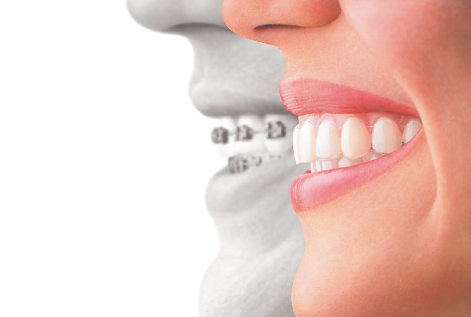Orthodontics Bryan, Conroe, Humble, Huntsville, Lufkin, Spring, Tomball